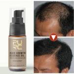 New              Hair Growth Treatment Hair Loss Spray Essential Oil